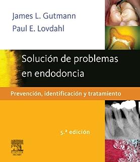 Solución de problemas en endodoncia: Prevención, identificación y tratamiento (Spanish Edition)