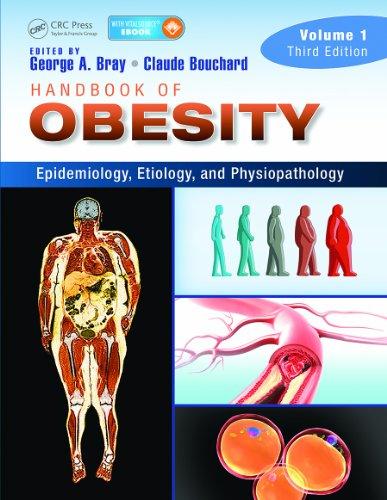 Handbook of Obesity — Volume 1: Epidemiology, Etiology, and Physiopathology, Third Edition Pdf