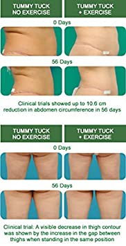 Amazon com : FreezeFrame Tummy Tuck 100ml THERMOGENIC BODY CONTOUR
