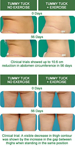 Freezeframe TUMMY TUCK, BODY CONTOUR CREAM, FAT BURNING CREAM 100ML