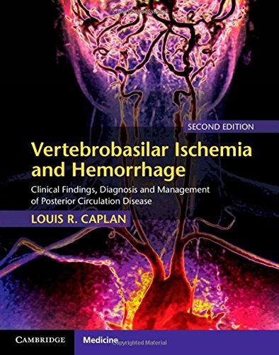 Vertebrobasilar Ischemia and Hemorrhage: Clinical Findings, Diagnosis and Management of Posterior Circulation Disease