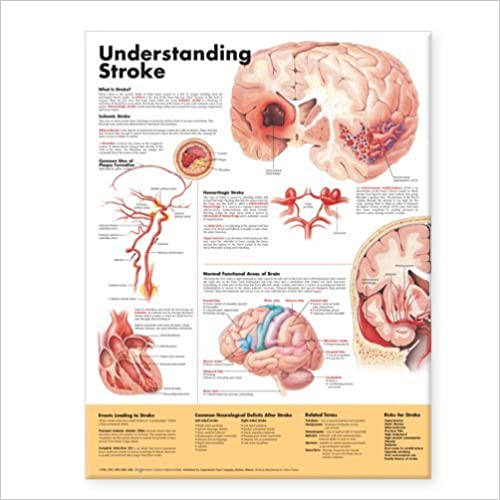 Paperback Author 2006 Understanding Stroke Anatomical Chart Anatomical Chart Company
