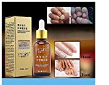 Best GokuStore Facial Massagers - SNAZII Fungus Fungal Nail Treatment Essence Antifungal Finger Review