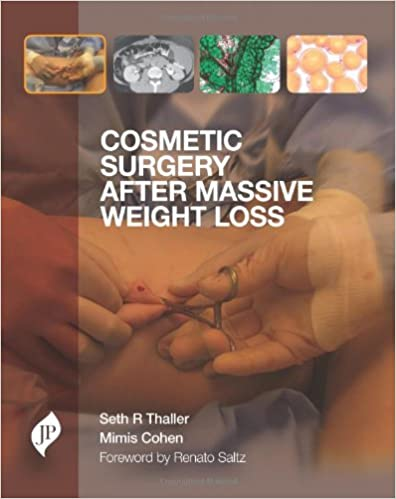 Cosmetic Surgery After Massive Weight Loss 9781907816284 Medicine