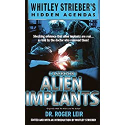 Casebook: Alien Implants (Whitley Streiber's Hidden Agendas)