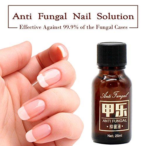 New Antifungal Nail Treatment