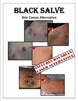 :OFFLINE: BLACK SALVE Skin Cancer Alternative. Privacy objects release Facultad calidez desde desde Justin