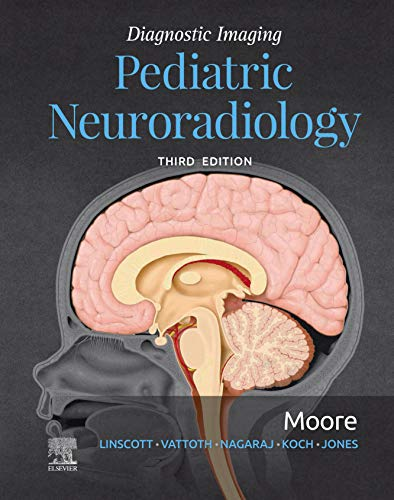 Diagnostic Imaging: Pediatric Neuroradiology E-Book - http://medicalbooks.filipinodoctors.org