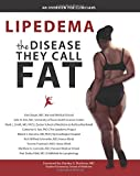 Lipedema - The Disease They Call FAT: An Overview for Clinicians