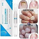 3ML Fungal Nail Treatment Pen Onychomycosis Paronychia Anti Fungal Nail Infection Chinese Herbal Toe Nail Fungus Treatment
