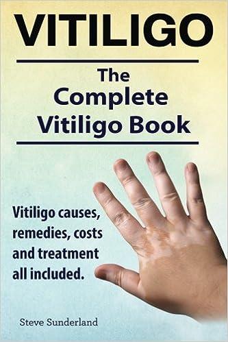 Vitiligo. Vitiligo causes, remedies, costs and treatment all included. The complete Vitiligo Book.