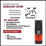 M. Skin Care Prevent Acne Control Facial Serum for