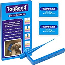 TagBand Skin Tag Removal Device Kit for Medium to Large Skin Tags by TagBand