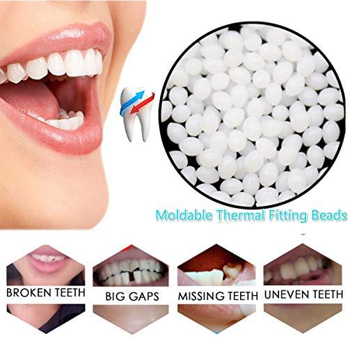 Snap On Instant Smile Teeth Moldable Thermal Fitting Beads Cosmetic Temporary Tooth Repair Kit Dental Makeover Denture Teeth Veneers (Fitting Beads For Cosmetic Teeth)