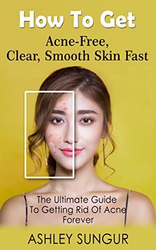 get rid of acne forever