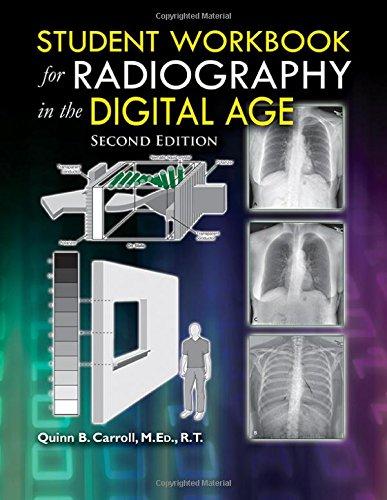digital radiography - 4