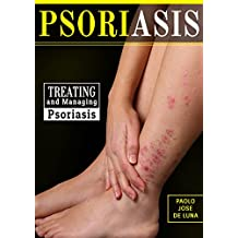 Psoriasis: Treating and Managing Psoriasis: What You need to Know About Psoriasis