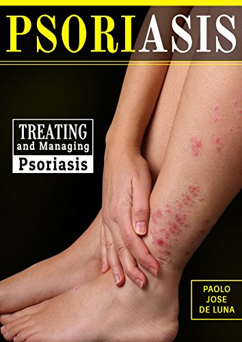 Psoriasis: Treating and Managing Psoriasis: What You need to Know About Psoriasis by [de Luna, Paolo Jose, Content Arcade Publishing]