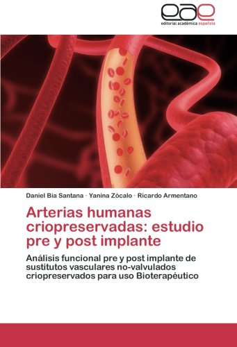 Arterias humanas criopreservadas: estudio pre y post implante: Anlisis funcional pre y post implante de sustitutos vasculares no-valvulados criopreservados para uso Bioteraputico (Spanish Edition)