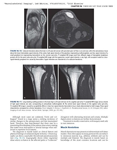 Musculoskeletal Imaging (Expert Radiology)