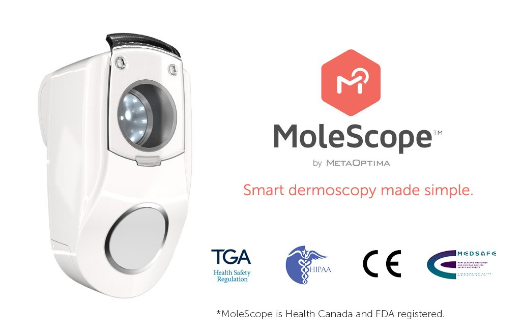 MoleScope (Home User Edition) - Smartphone Attachable Dermoscope for iPhone 5