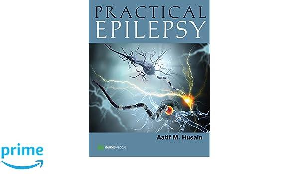 Practical epilepsy 9781620700297 medicine health science books practical epilepsy 9781620700297 medicine health science books amazon fandeluxe Gallery