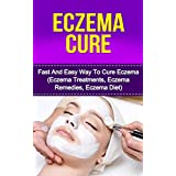 Eczema Cure: Fast And Easy Way To Cure EczemaToday only, get this Amazon bestseller for just $2.99. Regularly pricedat $4.99. Read on your PC, Mac, smart phone, tablet or Kindle device.You're about to discover how to manage and cure your eczema. We a...