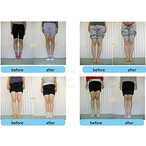 XEMZ for Orthotic Pronation Inserts Type Transparent Insole Feet Fallen Corrective O Foot Lift Black Back Heel Knock Knee Supination Corrector Bowleg Halfsphere Arch Leg Gel Support X Pads Flat rxnvrwPEg