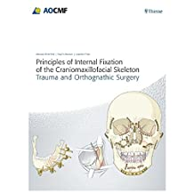 Principles of Internal Fixation of the Craniomaxillofacial Skeleton: Trauma and Othognathic Surgery