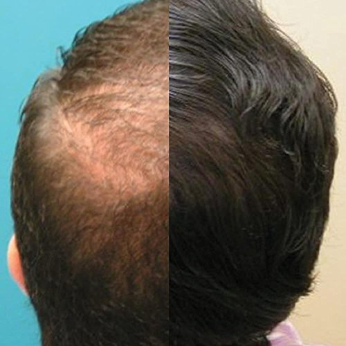Capillus82 Laser Hair Growth Cap Physician Recommended