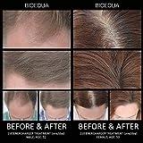 Hair Regrowth Hair loss Treatment - BIOEQUA