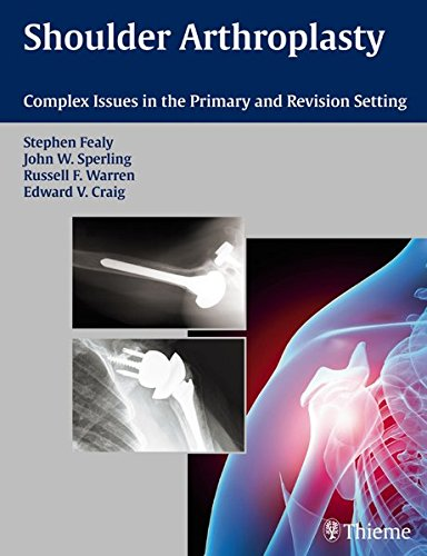 Shoulder Arthroplasty: Complex Issues in the Primary and Revision Setting