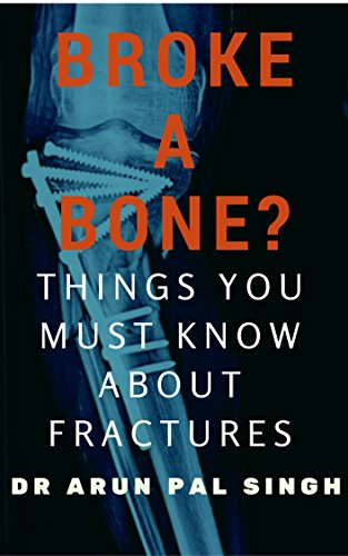 Fractures ebook and treatment rehabilitation of
