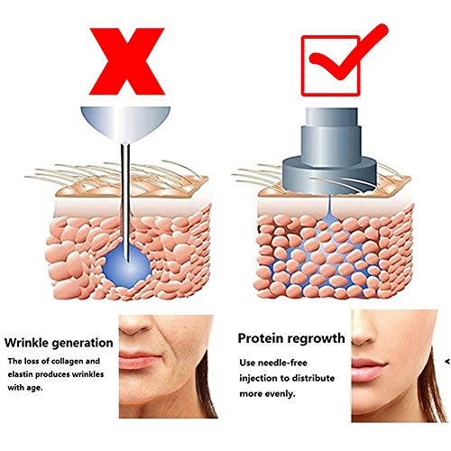 XHH 0.5ML Hyaluron Injection Pen Non-invasive Wrinkle Removal Face Lifting Skin Tightening Remover Firming Anti Ageing Kit Micro Pen,B by XHH (Image #3)