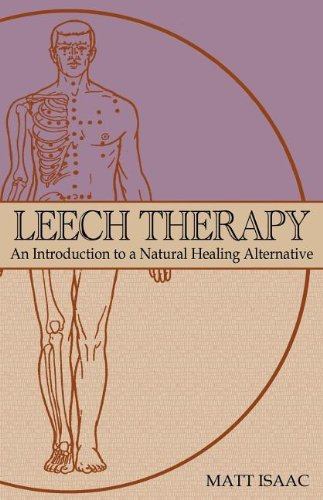 Leech Therapy: an introduction to a natural healing alternative