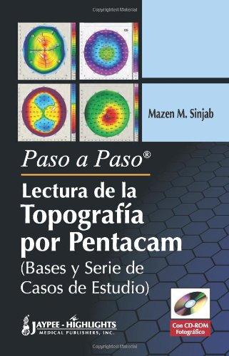 Descargar Libro Paso A Paso - Lectura De La Topografia Por Pentacam Mazen M. Sinjab