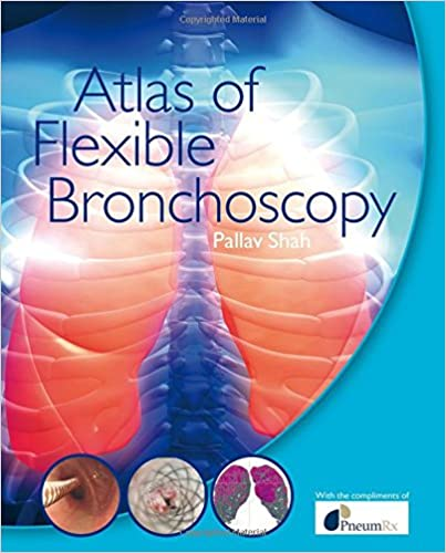 Atlas Of Flexible Bronchoscopy por Pallav Shah epub