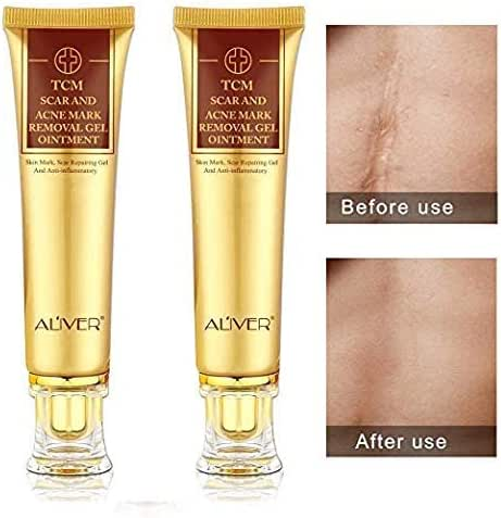 2PCS TCM Scar Cream Skin Repair Face Cream Acne Spots Acne Treatment Blackhead Whitening Cream Stretch Marks
