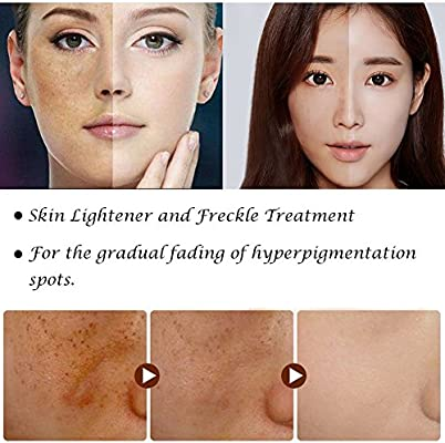 MS.DEAR Facial Whitening Cream Skin Lightening Cream Whitening Dark Spots Stain Freckle Removal Blemish Removal Serum Reduce Age Spots Freckles Melasma & Hyperpigmentation