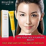 Best Lip Lightening Creams - BEACUIR Freckle Whitening Face Lightening Lip Private Nipple Review