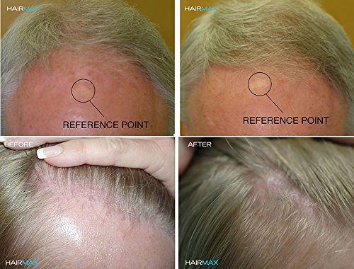 HairMax Laser Hair Growth Cap RegrowMD 272 (FDA Cleared). 272 Lasers for Hair Loss Treatment for Men and Women, Full Scalp Treatment to Reverse Thinning Hair while growing Denser, Fuller Hair.