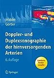 Doppler- und Duplexsonographie der hirnversorgenden Arterien