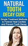 Natural Tooth Decay Cure: Simple Treatment Methods to Heal and Prevent Tooth Decay Using Diet and Nutrition (Cure Tooth Decay, Dental Surgery, Tooth Decay Repair, Heal and Prevent Tooth Decay)