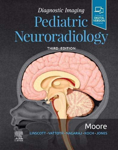 Diagnostic Imaging: Pediatric Neuroradiology - http://medicalbooks.filipinodoctors.org