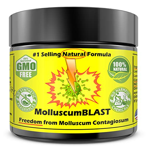 Molluscum Contagiosum Treatment Cream Kids Adults (15 Essential Oils & FDA Approved BHT) Vanishing Stick Natural Contagium Quickly Control Stop #1Selling LARGE 2oz 60ml 100% NATURAL FAST RELIEF (Best Treatment For Molluscum Contagiosum In Children)