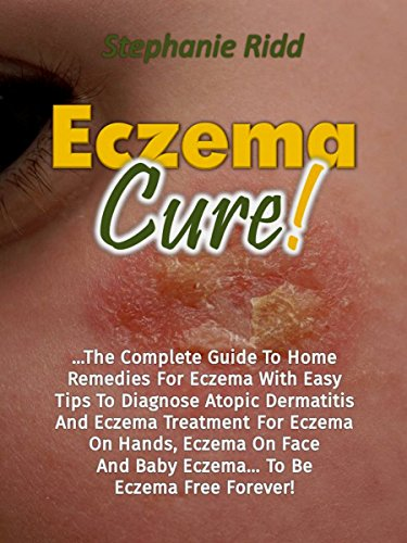 eczema cure the complete guide to home remedies for eczema with