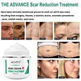 Scar Removal Cream For Old Scars, Stretch marks