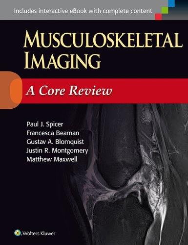Musculoskeletal Imaging: A Core Review - http://medicalbooks.filipinodoctors.org