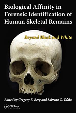 Biological Affinity In Forensic Identification Of Human Skeletal Remains Beyond Black And White Kindle Edition By Berg Gregory E Ta Ala Sabrina C Politics Social Sciences Kindle Ebooks Amazon Com