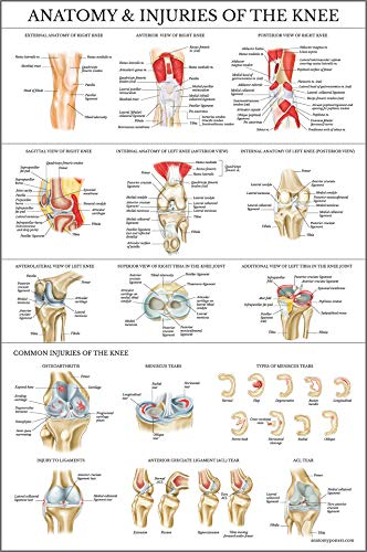 Laminated Anatomy and Injuries of The Knee Poster - Knee Joint Anatomical Chart - 18 x 27